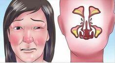 Máte silnú nádchu a úplne upchatý nos? Nemôžete dýchať a ruší vám to spánok? Väčšina ľudí si ako riešenie berie sprej alebo kvapky do nosa. Slečna vo videu vám však vysvetlí, ako uvoľniť dýchacie c…
