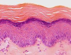 Epitelio estratificado plano queratinizado de la piel. Microscopía óptica.