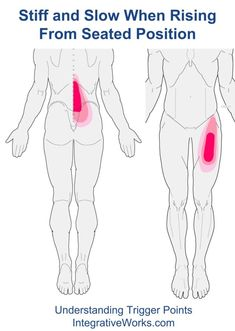 Trigger Points – Stiff and Slow When Rising From Seated Position | | Integrative Works