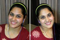 Mézes pakolások - Szépség és divat | Femina Underarm Whitening Cream, Natural Skin Whitening, Whitening Skin Care, Best Teeth Whitening, Acne Treatment, Skin Treatments, Unwanted Facial, Skin Lightening Cream, Coconut Oil Hair Mask