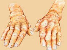 Tento olej vám ušetrí artritídu, ischias a ďalších 50 ochorení lepšie ako tabletky | MegaZdravie.sk