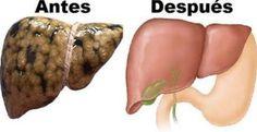 El hígado es el segundo órgano más grande del cuerpo humano y es considerado uno de los más importantes. Este asombroso órgano es el encargado de filtrar las toxinas nocivas que ingresan al organis…