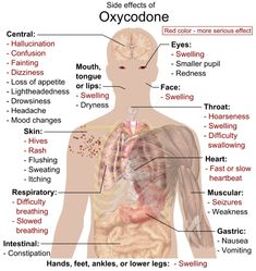 Oxycodone is an opiate often prescribed and used for moderate to severe pain. Find out the dangerous oxycodone side effects. Withdrawal Symptoms, Anxiety Relief, Pain Relief, Nurse Life, Over Dose, Ms Gs, Nursing Students, Nursing Schools, Salud