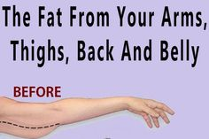The Correct Way To Use Baking Soda To Melt The Fat From Your Arms, Thighs, Back And Belly