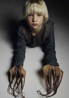 Maxim the boy with Octopus hands by Stefano Azario after Arthur Tress