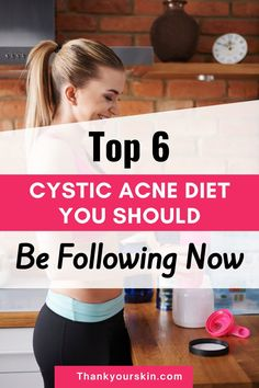 Cystic acne is a severe kind of acne that requires immediate treatment to avoid scarring. Here are six cystic acne diet suggestions to help you fight cystic acne. Have a look at it.#acne free diet #acne food diet #acne diy