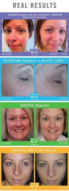 Rodan + Fields Skincare & 3 Giveaways