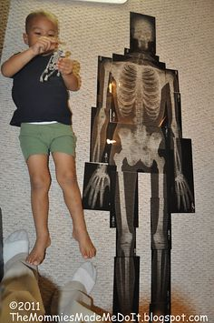 X-ray puzzle