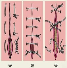 Surgical Sutures-i want to pin every picture on this page