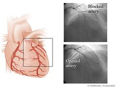 Nonemergency PCI (angioplasty) at Hospitals with or without On-Site Cardiac Surgery Nursing Care Plan, Nursing Jobs, Heart Disease Treatment, Cardiac Event, Myocardial Infarction, Vascular Disease, Cardiology, Care Plans, Surgery