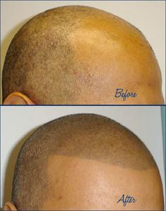 This is what happens when you lose your hair, your shave your head and tattoo it back on