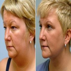 Tips to Lose Chin Fat
