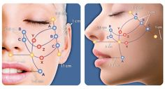 Silhouette Instalift is a suture-based technique to lift the skin of the face without incisions or general anesthesia.