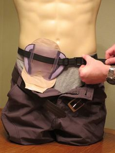 Ostomy shield