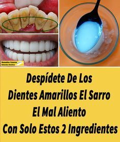 Comoeliminarelsarrodental,RemediosCaserosNaturalesEfectivos-Enjoy the videos and music you love, upload original content, and share it all with friend Beauty Care, Beauty Hacks, Beauty Shots, White Teeth, Dental Health, Hot Dog Buns, Home Remedies, Healthy Life, Health Tips