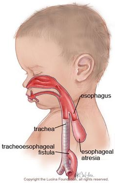 my-story-esophageal-atresia. My son was born with esophageal atresia. Here's our story and how we were able to overcome many health problems with a natural approach Nursing Board, Ob Nursing, Nursing Career, Nursing Tips, Neonatal Nursing, Nursing Mnemonics, Medical Specialties, Pediatric Nursing, Pediatric Ot