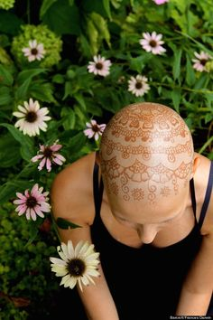 Henna Heals. A bold way to cope with baldness.