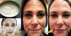 Thousands of Women Are Using This Homemade Cream to Rejuvenate Their Facial Skin and Get Rid of Wrinkles! You Will Look 10 Years Younger Overnight (RECIPE) Ride Du Lion, Lemon Juice Face, Lemon Face, Beauty Care, Beauty Hacks, Wrinkle Remedies, Les Rides, Face Skin Care, Tips Belleza
