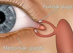When should punctal plugs be removed? #DryEye #CoastalEyeInstitue
