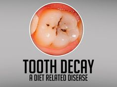 #Toothdecay (dental caries) is a diet related disease. Sugars in the food and drinks you consume mix with the bacteria in the plaque on your teeth and produce acids. These acids attack the outer layers of the tooth (tooth enamel).