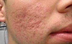 ¿Como Quitar Las Cicatrices De Acne? Estos 3 Remedios Naturales Te Ayudaran a Eliminar Las Feas Cicatrices De Acne De Forma Natural y Rapida: