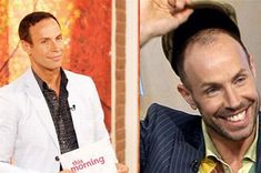 Jason Gardiner After years of hiding under hats, the Dancing on Ice judge forked out £30,000 for a hair transplant last year
