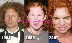 Carrot Top Before After Plastic Surgery Gone Wrong Picture