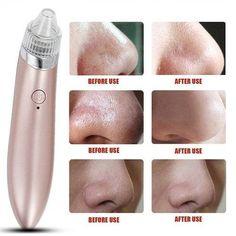 🎀سعر المنتج🎀 120ج + مصاريف الشحن Blackhead Vacuum, Blackhead Remover, Pimple Remover, Clean Pores, Clean Face, Blackheads On Face, Lotion, How To Remove Pimples, Dull Skin