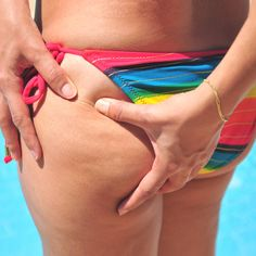 Take Charge! 5 Things You Can Do to Reduce Cellulite