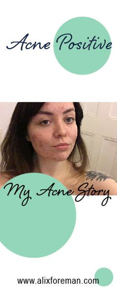 My first blog post on my Acne story - have a read if you're affected by acne and need some self love reinforcement.