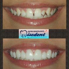 Before - After carillas porcelena listas sector superior minimamente invasiva mas blanqueamiento. el arte de la salud dental working... #carillas #porcelana #desing #color #odontologia #dentist #dentaltray #dia #dental #dentistry #healthylife #higienebucal #higiene #healthyteeth #tweegram #teeth #tips #pasion #odonto #work #vida #smile #salud #style #photoofday #salud #vida #estilo #smile #finish by miso_dent Our General Dentistry Page…