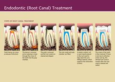 Root Canal - Endodontics