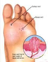 Siğil tedavisi pek de kolay bir tedavi süreci değil aslında. Fakat Fulya Ayak Cerrahisi merkezinde ayak siğil tedavisi lazer ile yapılıyor. Böylece siğil tedavisi çok daha kısa sürede başarıya ulaşıyor.  Siğil Tedavisi: http://www.fulyaayakcerrahisi.com/ayakta-tabaninda-sigil-tedavisi/