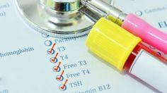 TSH crescut - cauze si simptome nivel ridicat de TSH- Sanatate de fier Lab Values, Pituitary Gland