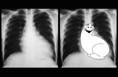 """Shmoo sign refers to the configuration of the heart with left ventricular enlargement and dilated aorta on AP chest radiographs. The """"Shmoo"""" is a fictional cartoon creature from Al Capp's Li'l Abner comic strip in the The prominent left he."""