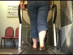 Genu valgum valgus f/foot pronated STJ