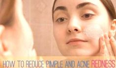 How to Reduce Pimple Redness, Swelling and Size?You can find Reduce pimple redness and more on our website.How to Reduce Pimple Redness, Swelling and Size? Reduce Pimple Redness, How To Reduce Pimples, Acne Treatment, Skin Treatments, Head Pimples, Pimple Solution, Natural Oils For Skin, Pimples Overnight