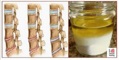 If you are having neck osteochondrosis, a really painful and frustrating condition,you need to try this natural remedy which is extremely effective for erasing the pain for good! This homemade natural remedy is very simple to makeand use so you ... Read More »