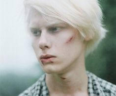 albino model - Google Search