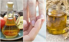 Treat Brittle Nails with These 5 Home Nail Remedies — Step To Health Grow Nails Faster, How To Grow Nails, Baking Soda Nails, Best Toenail Fungus Treatment, Baking Soda And Lemon, Brittle Nails, Strong Nails, Manicure At Home, Healthy Nails