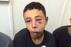 BETHLEHEM (Ma'an) — A Palestinian-American teen who was beaten, badly injured, and detained by undercover Israeli police officers in Jerusal. East Jerusalem, House Arrest, American Teen, Combat Gear, Men In Uniform, Police Officer, Weekend Is Over, Human Rights, Politics