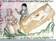 'Sadly and with a Bitter Heart': What the Caesarean Section Meant in the Middle Ages - Medievalists.net