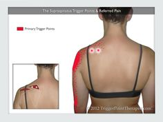 The Supraspinatus Trigger Points & Referred Pain