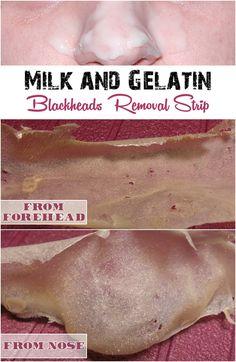 Remove blackheads with milk and gelatin
