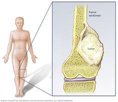 Childhood Bone Cancer   Osteosarcoma   Ewings Sarcoma   Tumors Kids   Children