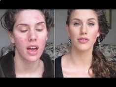 Best Acne Treatment! Best Acne Treatment How to get rid of acne fast overnight home remedies 2014