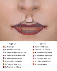 areas of lip injection - Google Search