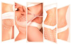 Cosmetic surgery to enhance the overall body - Breast Augmentation Wilberto Cortes, M. Leg Cellulite, Reduce Cellulite, Massage Images, Body Spa, Skin Clinic, Body Sculpting, Liposuction, Body Contouring, Body Treatments