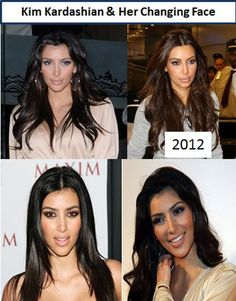 """#1 Before and After  Kim Kardashian's plastic surgery rumors have ranged from her butt to her eyes and now we are talking about """"Are her lips fake or nature"""". There are several different lips augmentation procedures that Kim would have available."""