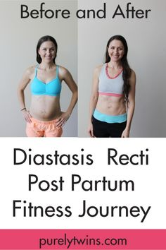 "Before and after post partum fitness journey to close the separation between your abdominal muscles will constantly cause the ""pooch"". Healing your ""mummy tummy""  Diastasis Recti: how to heal from having kids and get your abs back together with the right exercises, lifestyle habits and mindset."
